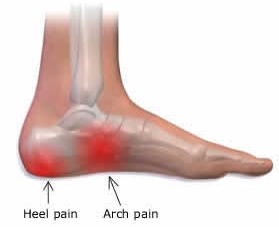 Massage For Plantar Fasciitis