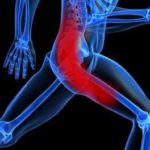 Self care and massage for Piriformis Syndrome