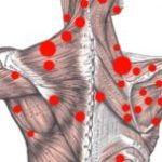 Trigger Points Self Treatment
